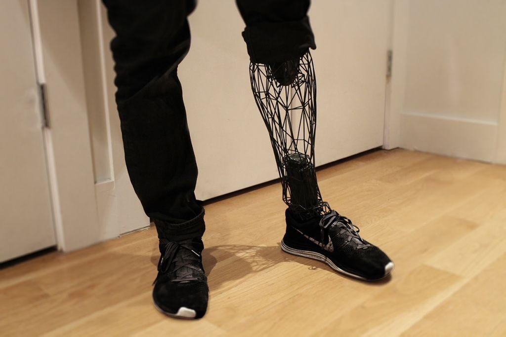 impresion protesis-pierna
